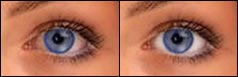 Eye Whitening -- before &amp; after